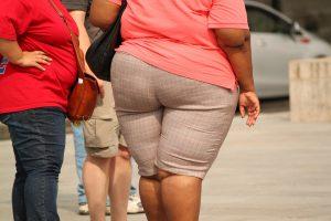 Häufig dient das Absauge von Fett ästhetischen Gründen.
