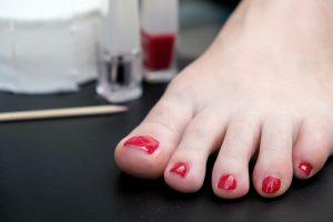 Veränderte Fußnägel können unterschiedliche Ursachen haben.