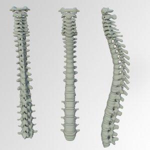 Die menschliche Wirbelsäule umfasst 23 Bandscheiben.